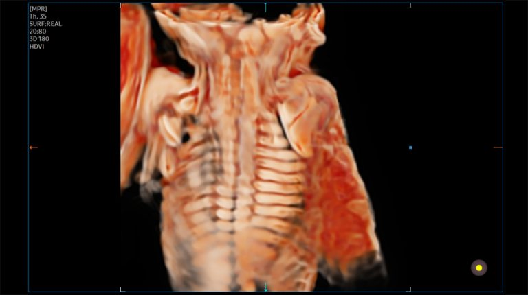 Magzati gerinc CrytalVue™ képalkotással
