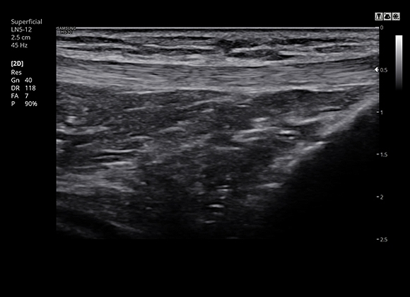 Knee with ClearVision