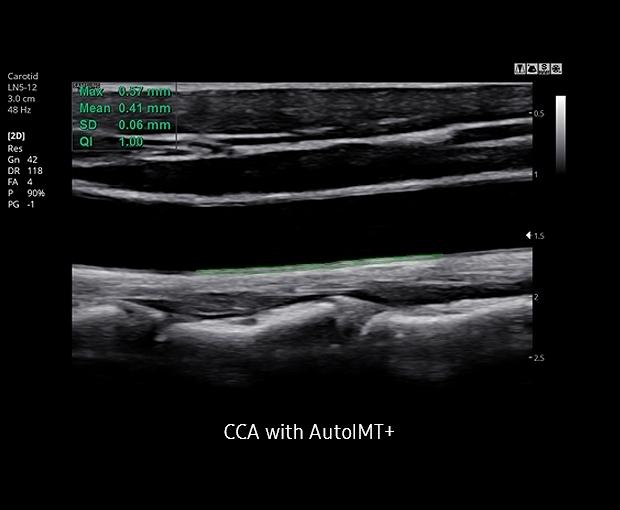 HS30 ultrahang készülék - CCA with AutoIMT+