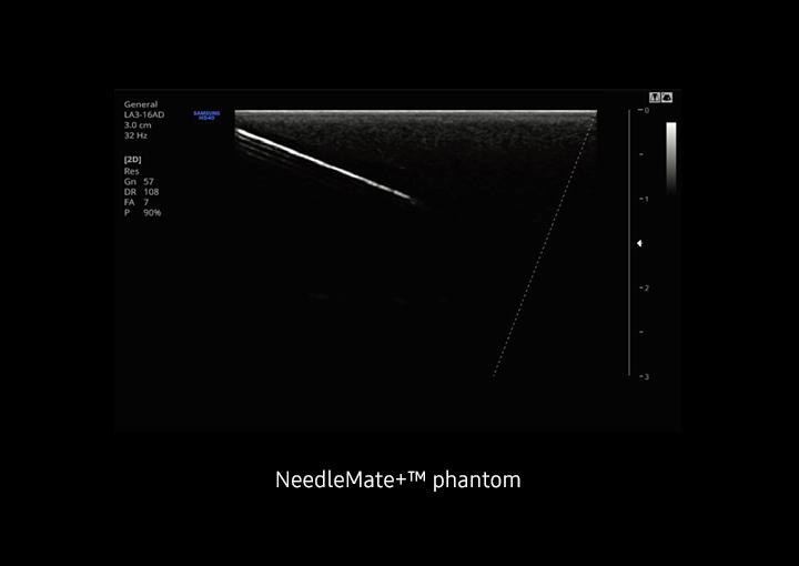 HS40 ultrahang készülék - NeedleMate+™