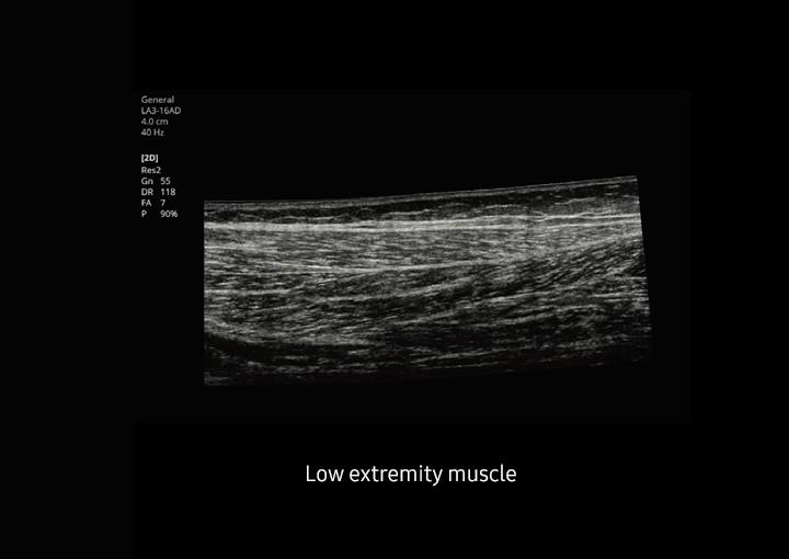 HS40 ultrahang készülék - Panoramic képalkotás
