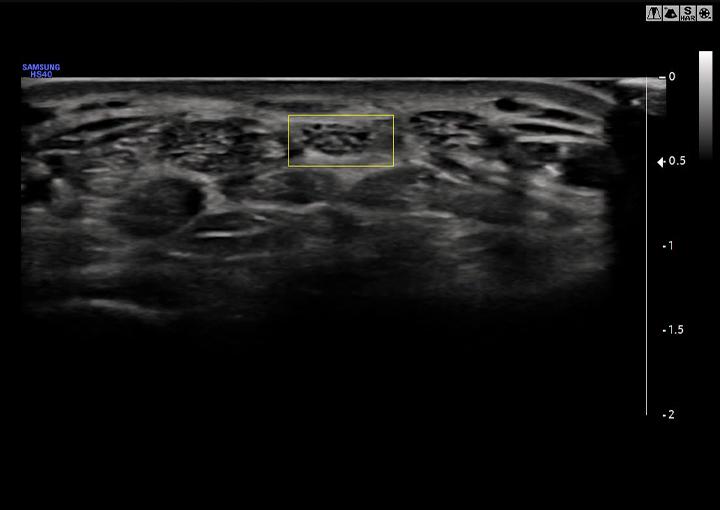 HS40 ultrahang készülék - Nervetrack™