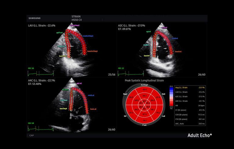 HS50 ultrahang készülék - Strain+ kardiológiai eszköz