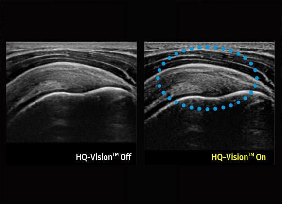 Samsung HS60 ultrahang készülék - HQ-Vision™