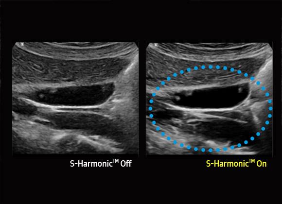 Samsung HS60 ultrahang készülék - S-Harmonic™