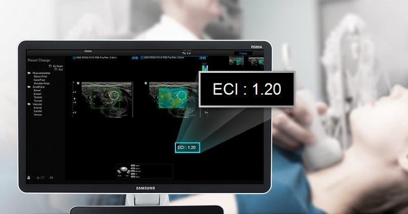 SAMSUNG RS80 Prestige ultrahang készülék - Elasztográfia a pajzsmirigy vizsgálatánál
