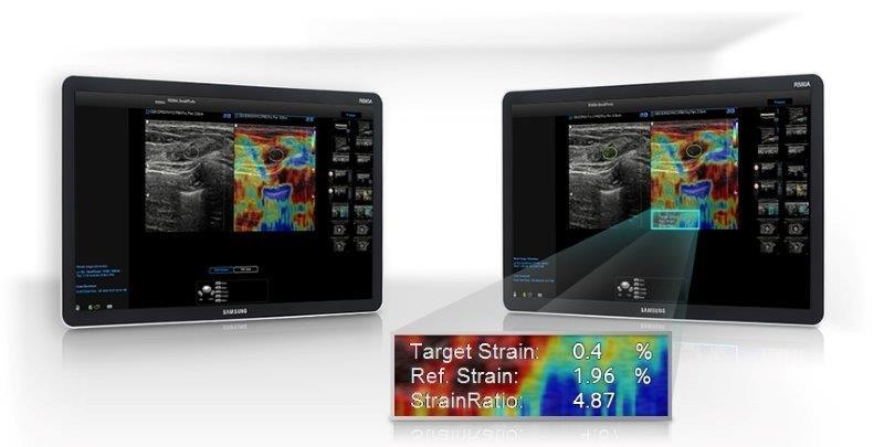 SAMSUNG RS80 Prestige ultrahang készülék ulek - Elasztográfia az emlő vizsgálatánál