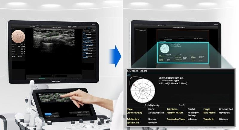 SAMSUNG RS80 Prestige ultrahang készülék - S-Detect az emlő vizsgálatánál
