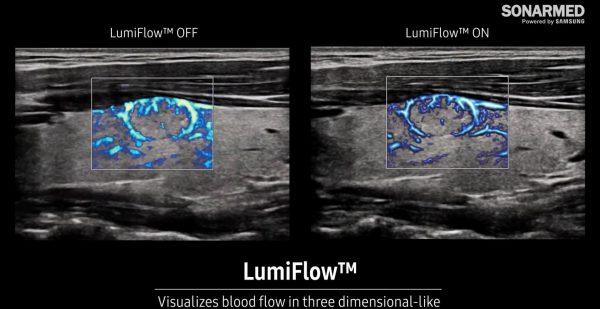 LimuFlow™ képalkotás a Samsung HERA W9 és RS85 Prestige ultrahang készülékekkel