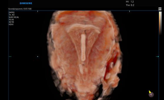 HERA W9 - Crystal 3D intra uterine device