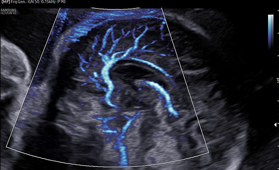 Crystal microvascularized blood flow image